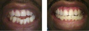 ortodoncia en colombia